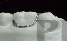 circular(2)