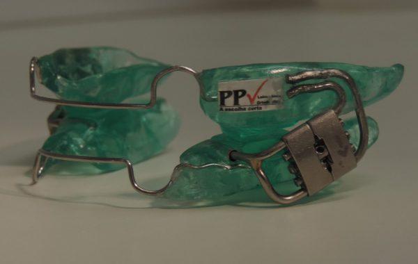 PPV 2 em resina – parafuso Hirax